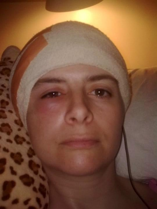 Woman with a bandage on her head and swollen eye after surgery