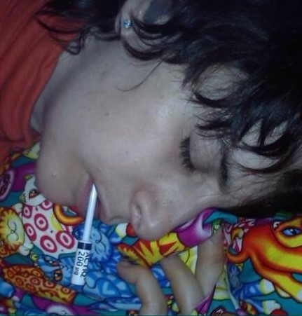 Niki sleeping in great pain looking ill with a fentanyl lollipop in her mouth